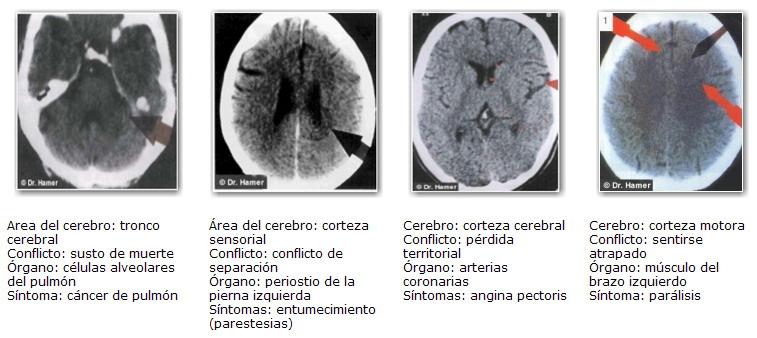 Focos Hamer Nueva Medicina Germanica Articulos Caroline Markolin NMG GNM
