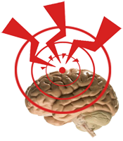 DHS Nueva Medicina Germanica Hamer 1ra Ley Biologica Ferrea NMG