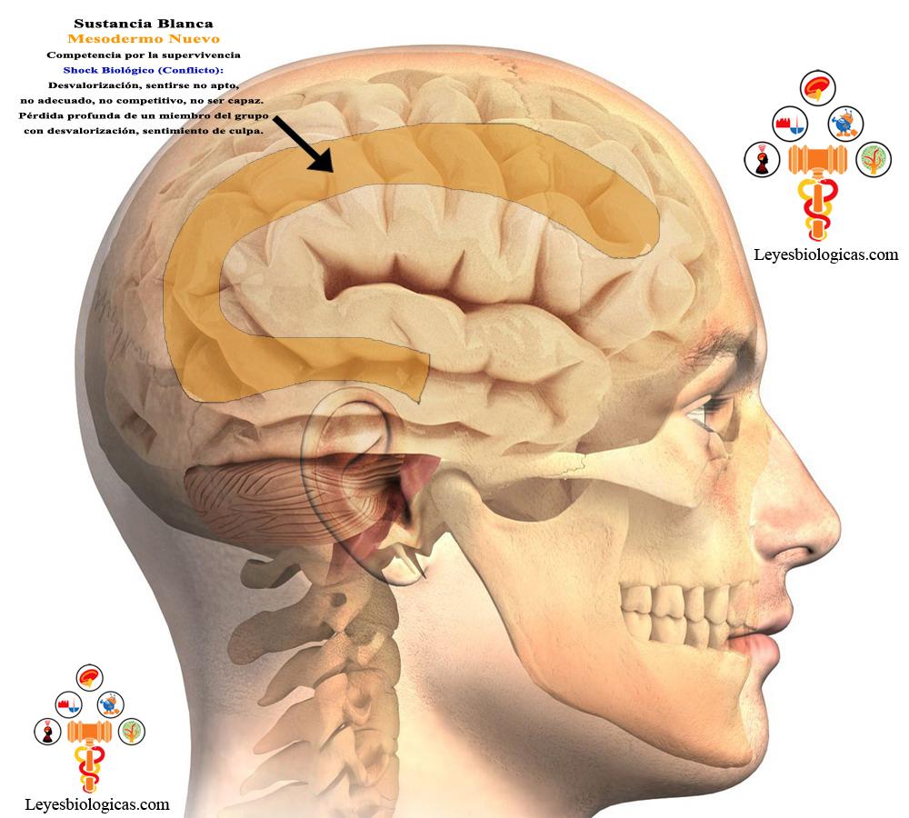 Cerebro Humano Nueva Medicina Germanica Hamer NMG Sustancia Blanca Hoja Embrionaria Mesodermo Nuevo