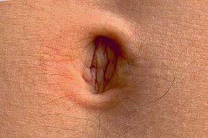 Endodermo Tronco Cerebral Nueva Medicina Germanica Hamer Organos Ombligo