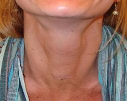 Endodermo Tronco Cerebral Nueva Medicina Germanica Hamer Organos Cuello Tiroides