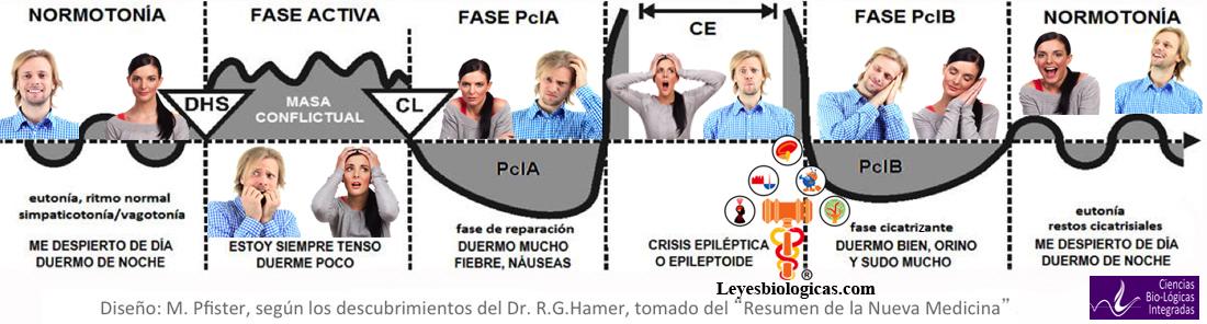Nueva Medicina Germanica NMG Hamer Articulo Andy Villa Pasadofuturo.com Enfermedad Felicidad Leyes Biologicas 5LB DHS PclA Simpaticotonia Vagotonia Conflictolisis Stress Fase Activa